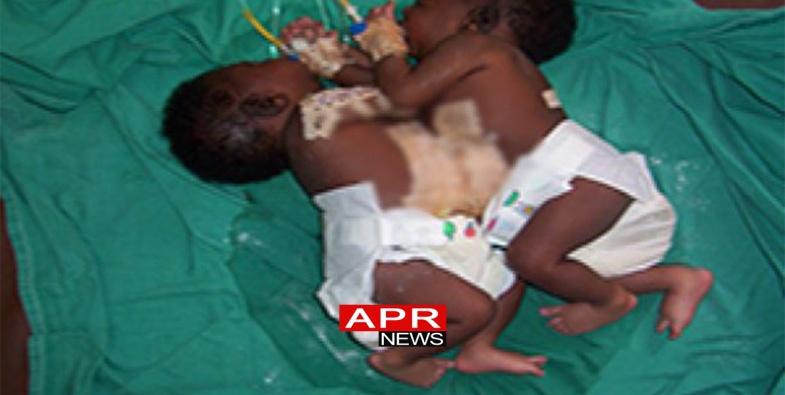 Photo of Des sœurs siamoises opérées avec succès au Sénégal !