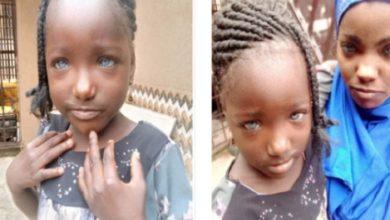 Photo of Une fillette Nigériane rejetée par son père à cause de ses yeux bleus !