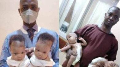 Photo de Nigeria : Des jumelles siamoises séparées avec succès par une équipe dirigée par le professeur Lukman Abdul-Rahman